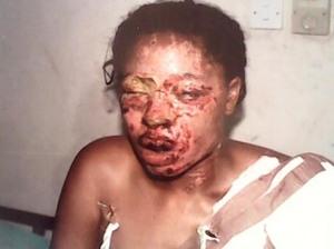 Blessing: The acid bath victim