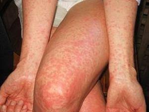 Zika virus infection